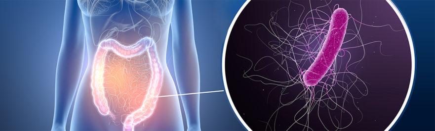 C-Diff in Human Intestine