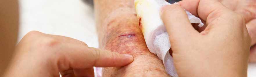 Cleaning a wound on an arm